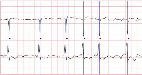sample ecg recording