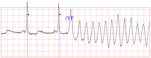 [sample ecg recording]